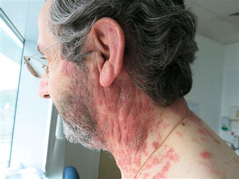 Two types of varicella zoster in one patient | BMJ Case
