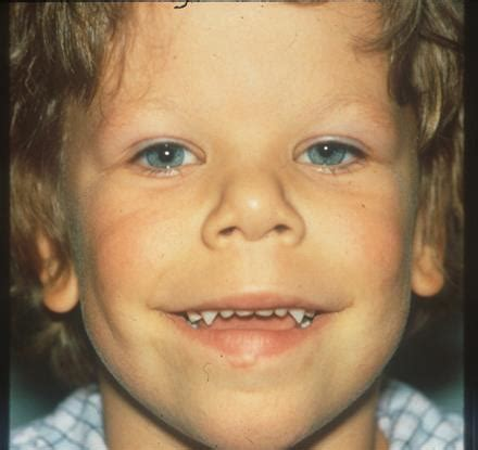 Williams Syndrome (Williams-Beuren Syndrome) - American